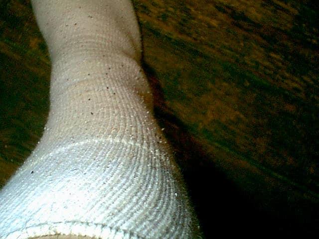 Fleas on my socks
